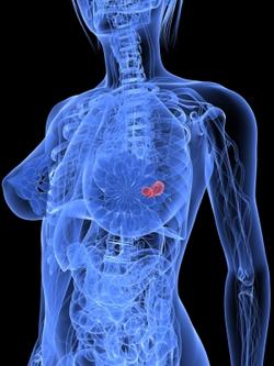 cancer-du-sein-MPI