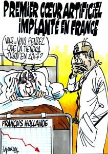 Ignace - Premier cœur artificiel implanté en France