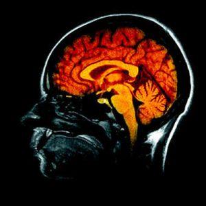 cerveau-MPI